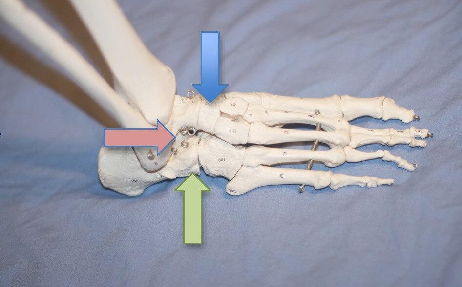 Artrodese