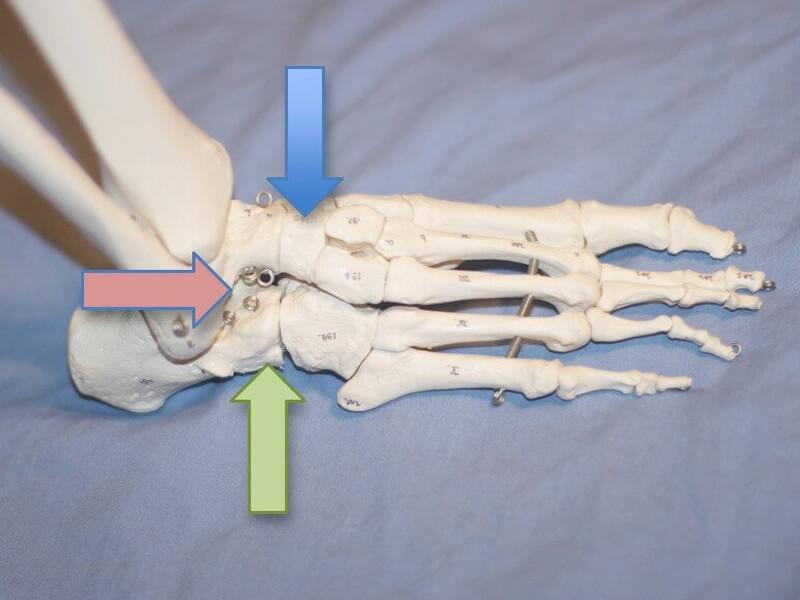Ortopedia - Artrodese