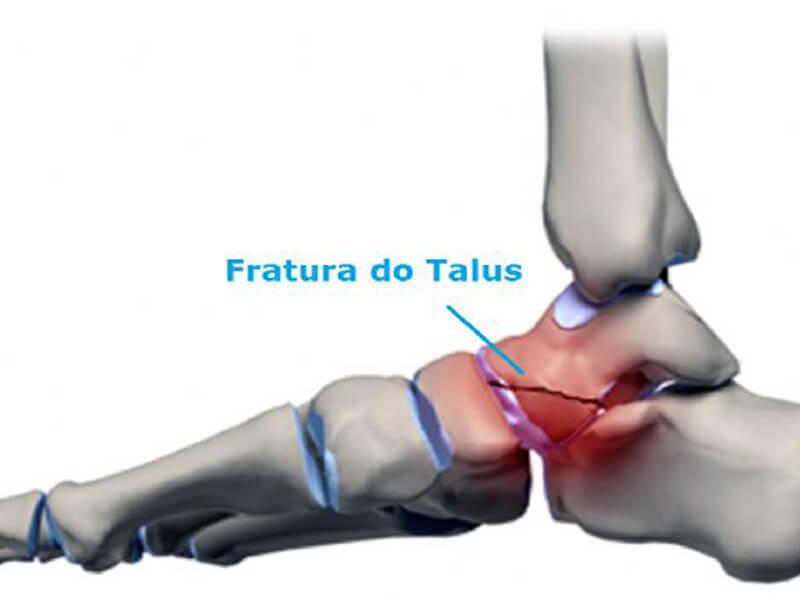 Ortopedia - Fratura de Talus