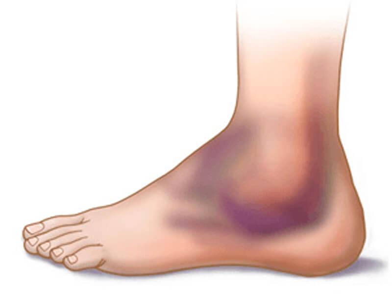 Ortopedia - Fratura no Tornozelo