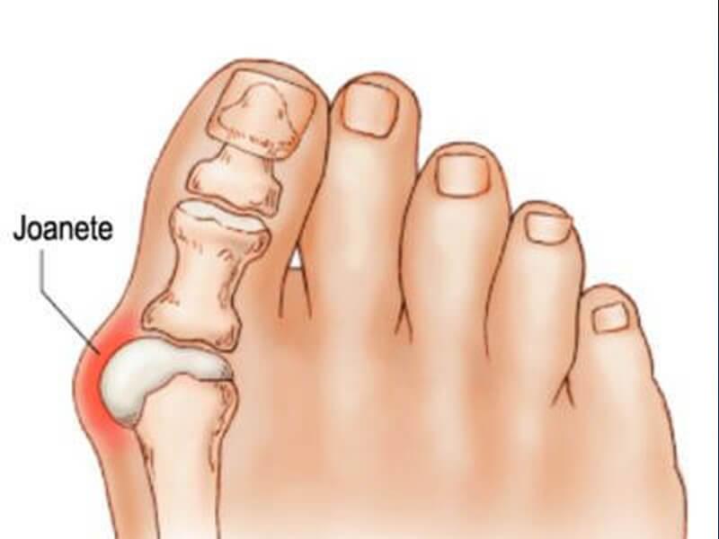 Ortopedia - Joanete
